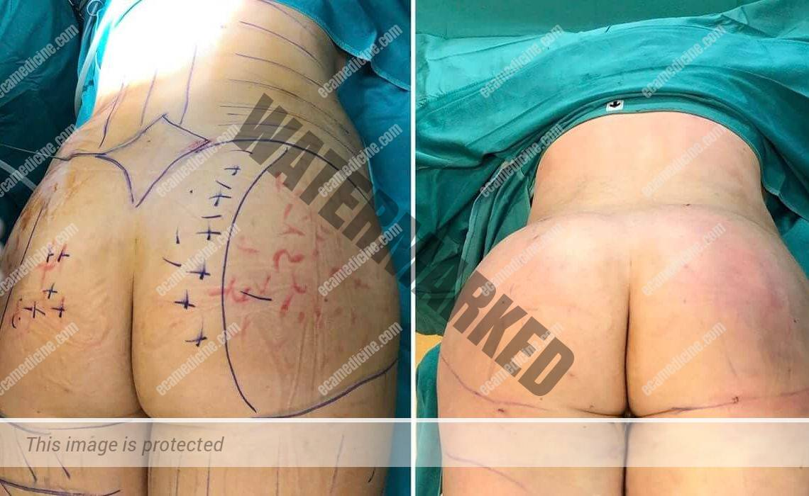 liposuction doctor training accredited course