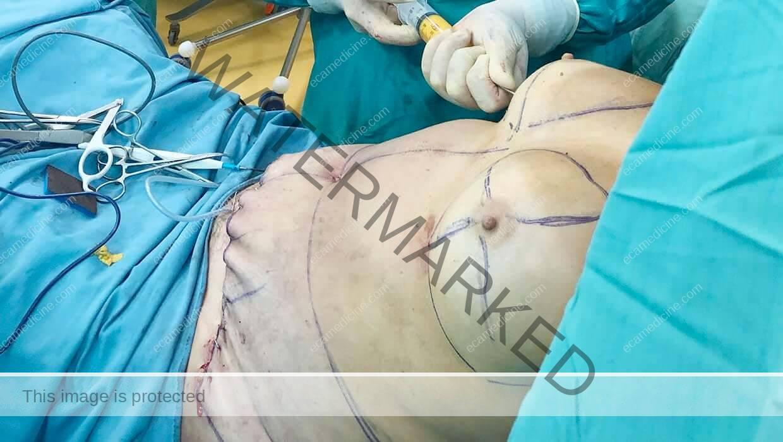 liposuction doctor trainings