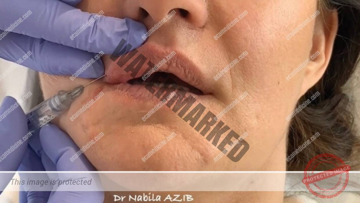 Non-surgical 3D lip transformation aesthetic training