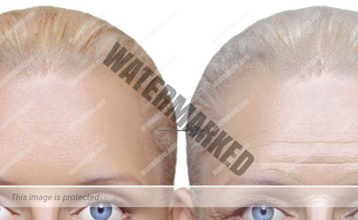 Non-surgical temples and forehead contouring facial