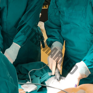 liposuction hands-on course