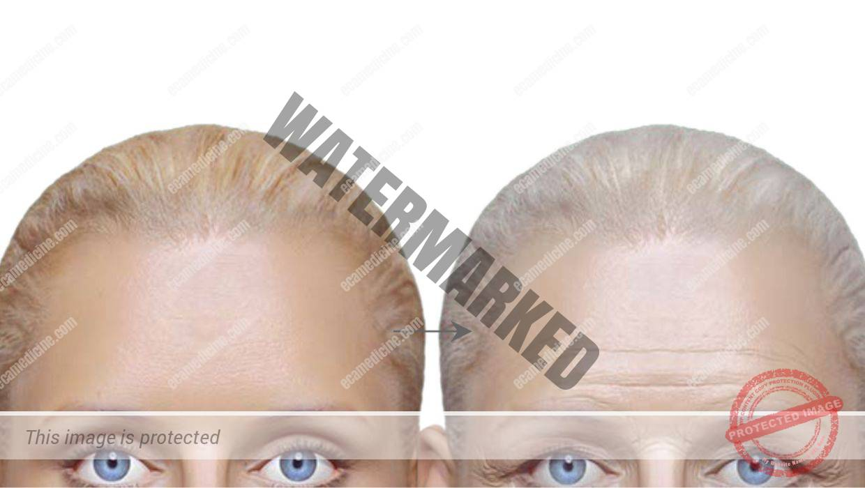 forehead injection course