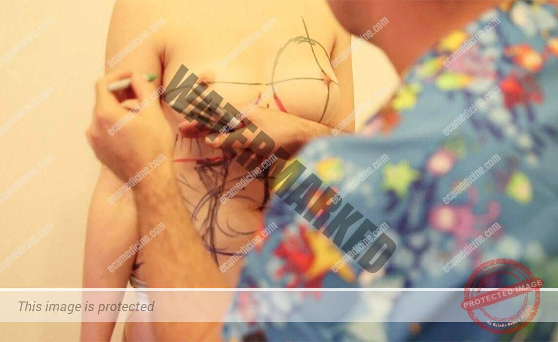 liposuction doctor training