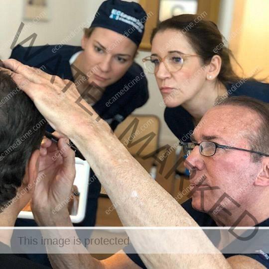 blepharoplasty hands-on training