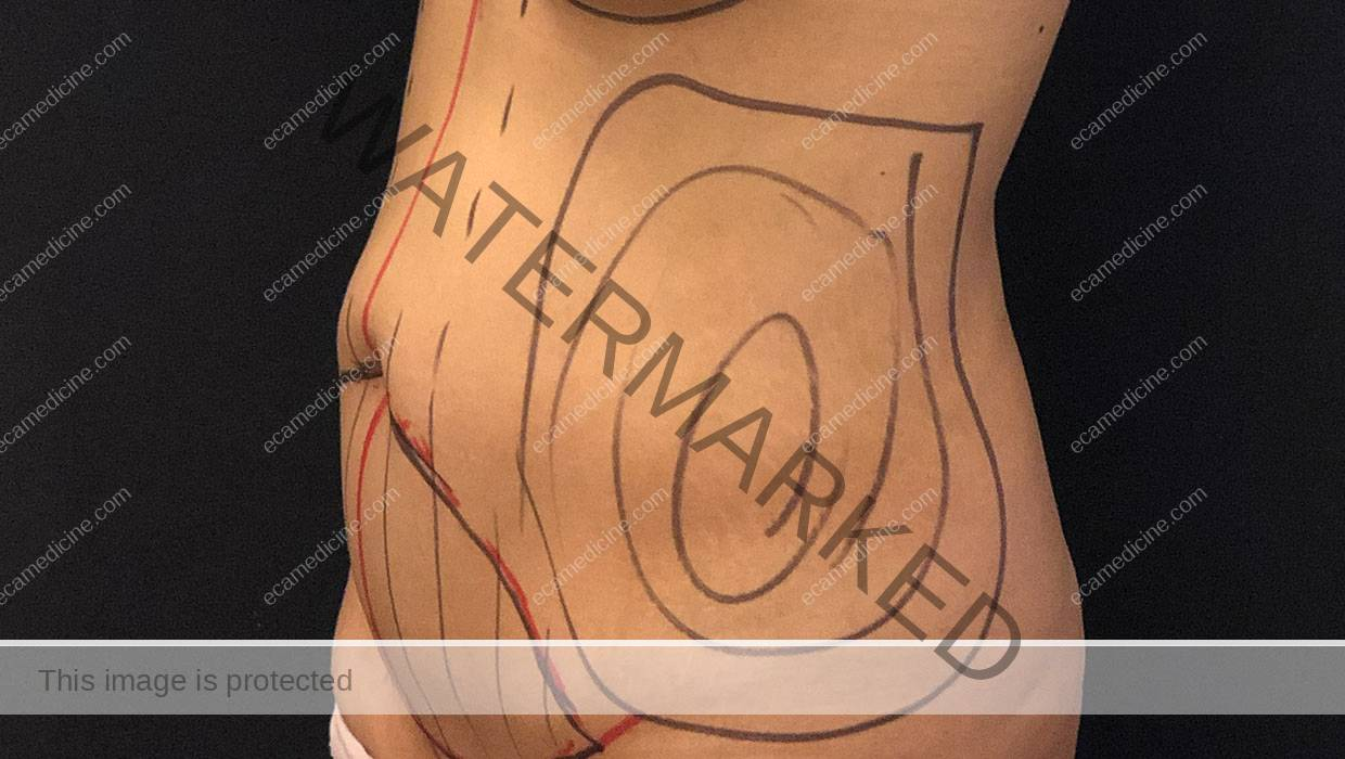 flanks lipo course