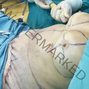 breast fat augmentation course