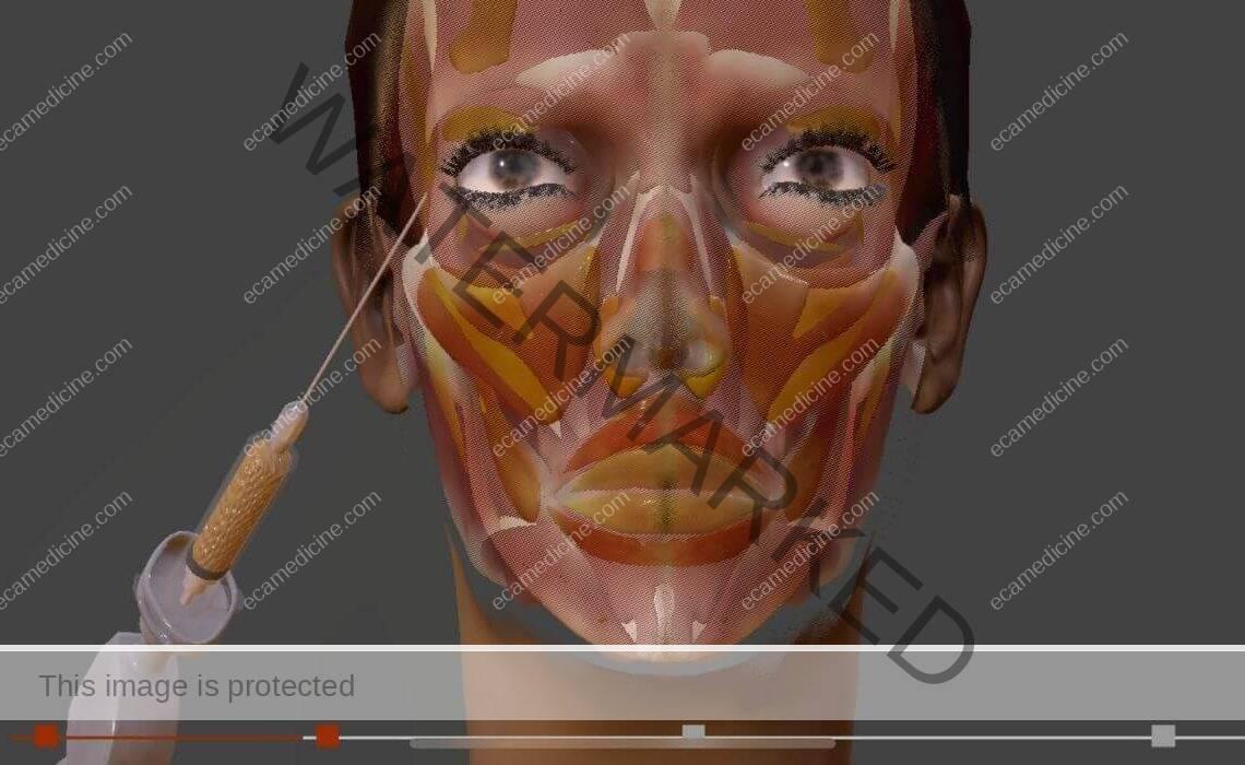 facelift facial rejuvenation training course for doctor
