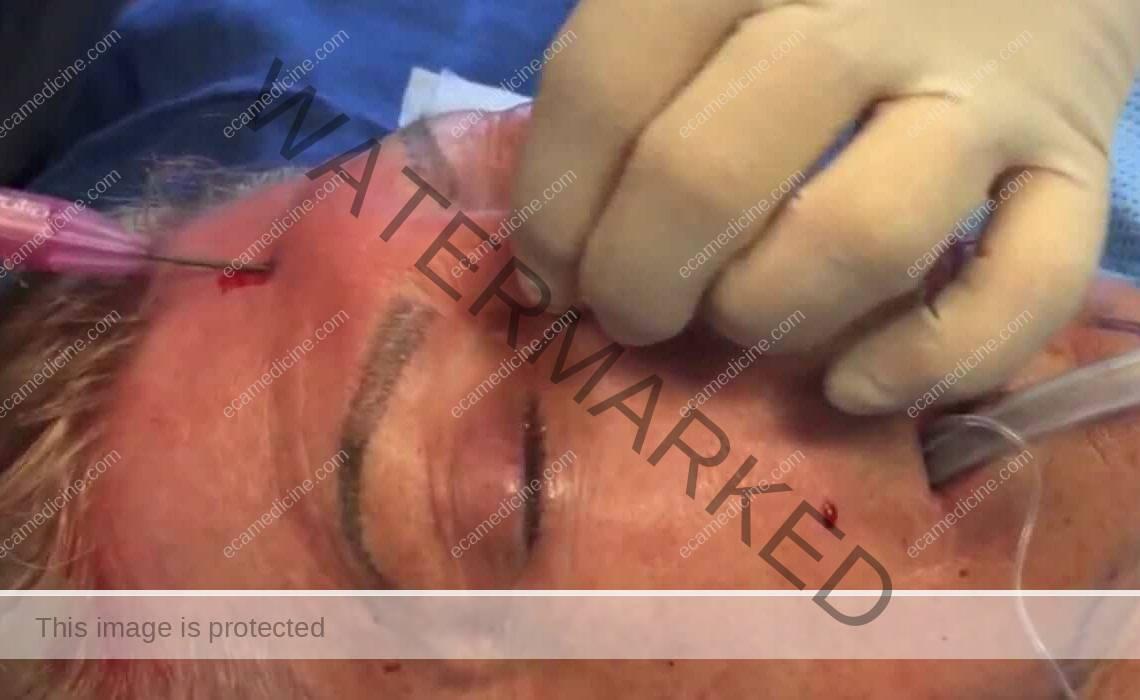 facial rejuvenation training fat grafting