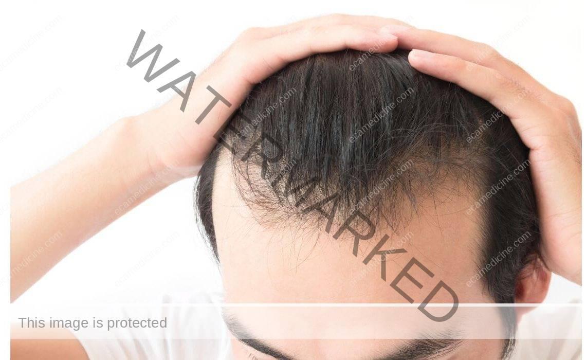 hair transplantation accredited aesthetic training