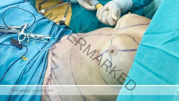 liposuction doctor aesthetic training