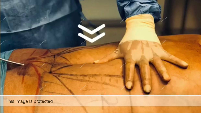 liposuction aesthetic training online