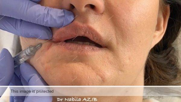 lips fillers course