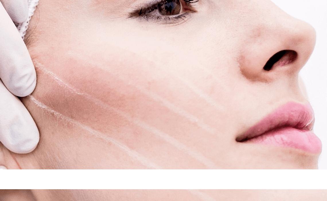 facial facelift threadlift aesthetic training