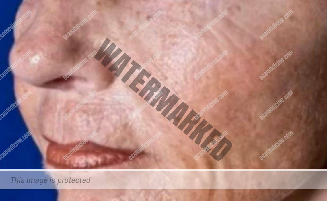 aesthetic dermatology online course